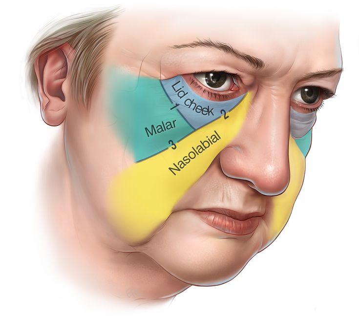 W Aesthetics Plastic Surgery