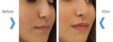 To make the lips more attractive, plastic surgeons suggest the Lip augmentation procedure. It is safe, effective, and here is how much it costs in the UAE