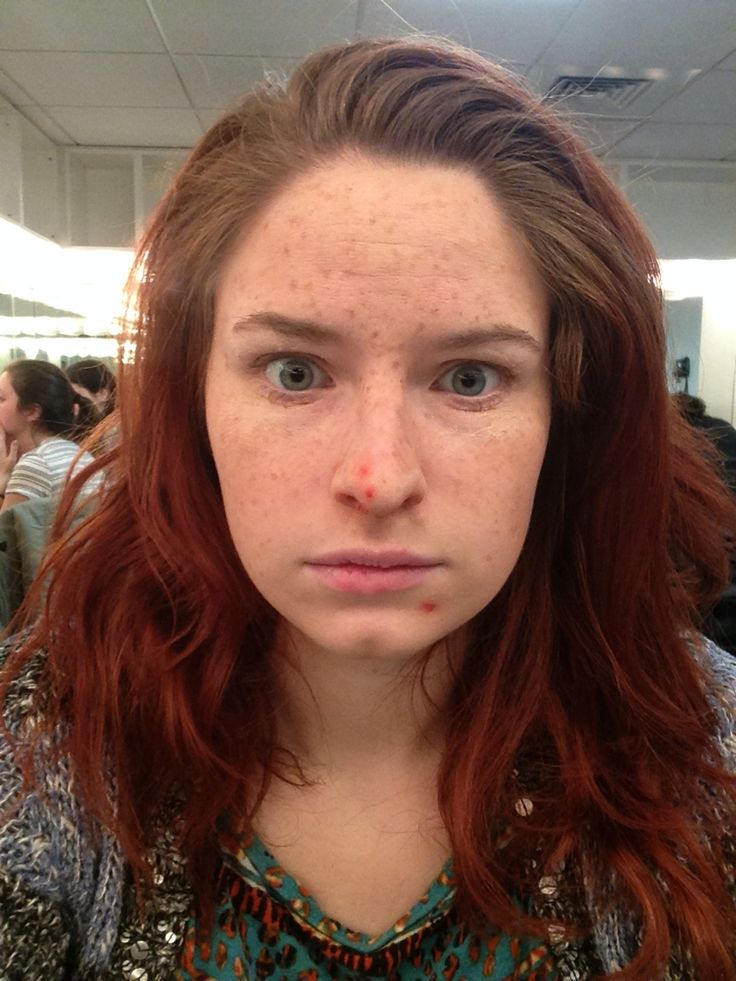 Skin effects: freckles and pimples
