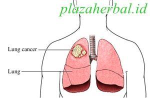 Obat Herbal Penyakit Kanker Paru Paru Terbaru Paling Ampuh