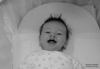 Leyla Fashion, mama, beauty en Japan blogger / vlogger: Abortus bij Schisis ( Hazenlip )  dubbele schisis baby