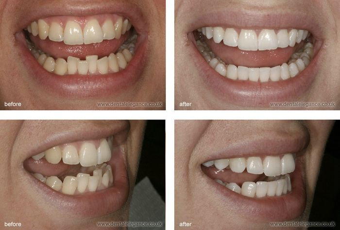 Clear Braces Cost Before After