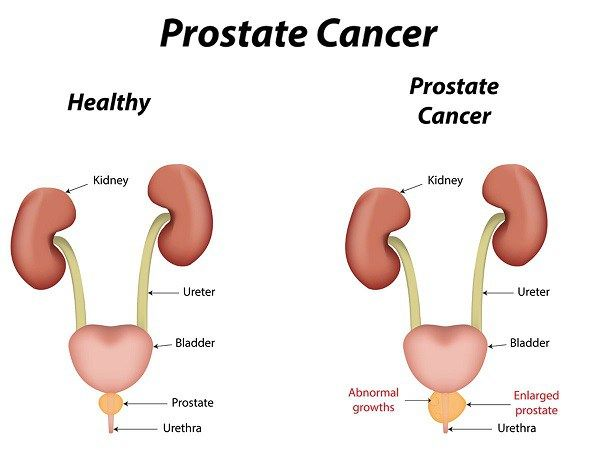 Part 1 of 8 Bone metastasis and prostate cancer About 80 percent of the time prostate cancer cells metastasize, or spread, they will spread to bones, such as the hip, spine, and pelvis bones. It ca…