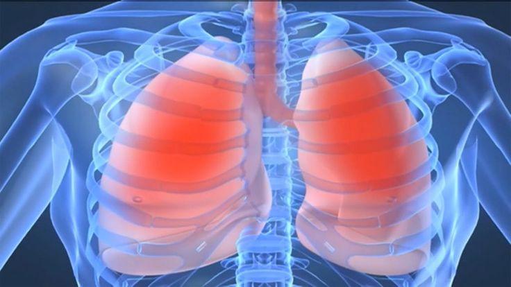 La congestión del pecho o torácica es una afección muy incómoda causada por la acumulación de moco en el tracto respiratorio. La acumulación de moco puede ser el resultado de un resfriado común, gripe, asma, neumonía y otras infecciones de las vías respiratorias. Los síntomas de la congestión torácica incluyen dolor en el pecho, sibilancias al toser, dolor de garganta, dificultad para tragar, mareos, presión en el pecho y flema en los pulmones. Aunque la mayoría de las personas consultan al…