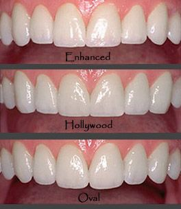 Digital Smile Design By Best Cosmetic Dentist In Beverly Hills ...