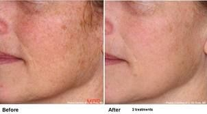 IPL Laser Skin Rejuvenation targets age spots and sun damage, and broken capillaries - the most aggressive way to reduce browns and reds on your skin with little or no down-time.    http://www.seriouskin.net/laserskinrejuvenation.html