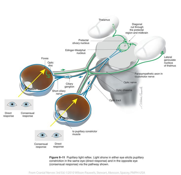 206 best retina images on Pinterest | Medical, Optometry and Medicine