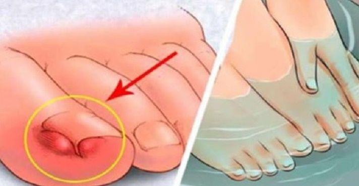 Você sabe o que é uma onicocriptose?Sabe sim.É o termo médico para designar unha encravada.Palavrinha feia, não é?E você certamente já enfrentou esse problema, certo?