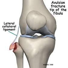 Image result for avulsion fracture