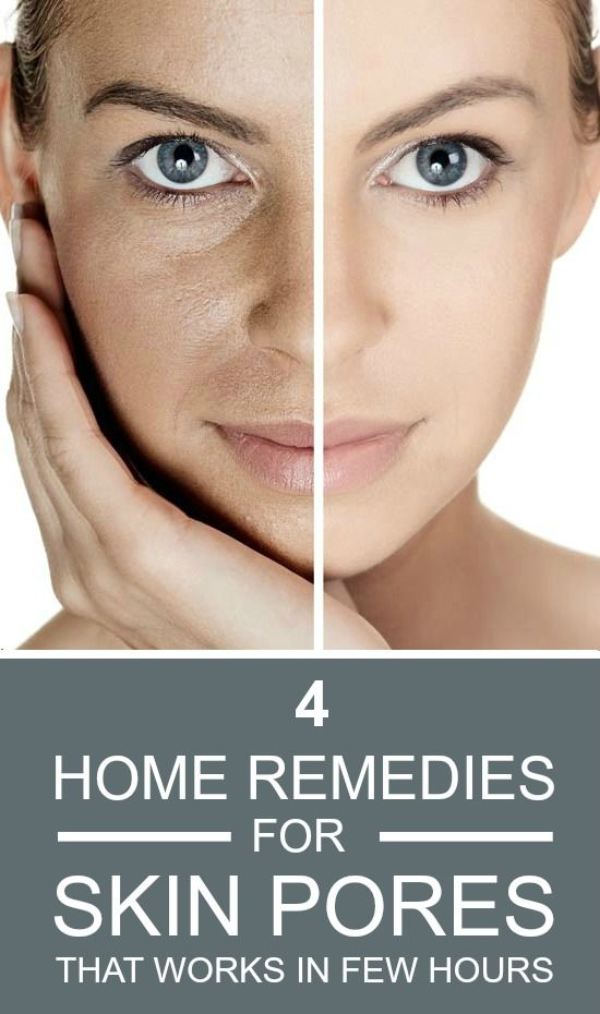4 Effective Home Remedies For Skin Pores That Works In Few Hours.