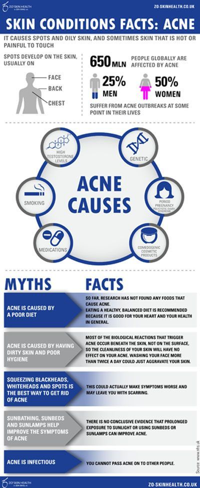 Acne What is acne? (INFOGRAPHIC)