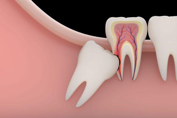 ضرس العقل المدفون وتأثيره على الاعصاب Wisdom Tooth Extraction Tooth Extraction Wisdom Teeth Removal