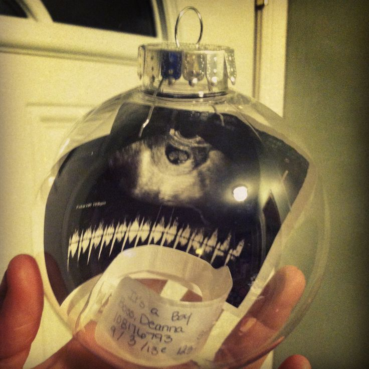 Clear plastic ornament filled with first sonogram and the hospital bracelet from giving birth--- great keepsake on display