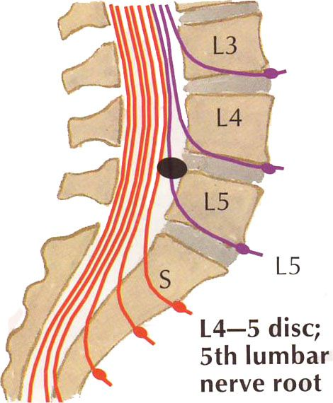 Listhesis of l5 s1