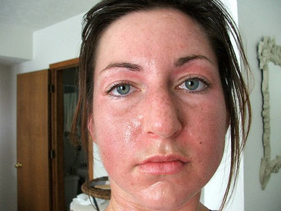 Can taking methadone cause excessive sweating?   Oily skin ...