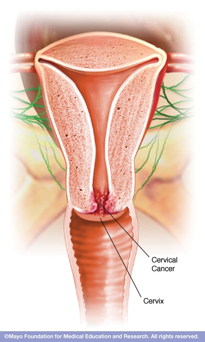 January is Cervical Cancer Awareness Month. The American Cancer Society estimates about 4,030 women died from #CervicalCancer in 2013. Learn about the disease and how to protect yourself.
