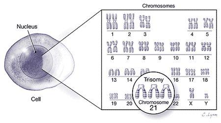 Image result for down syndrome chromosomes