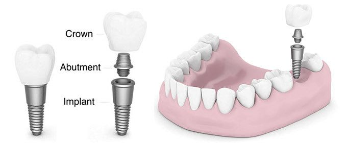 Dental Implants Pennsylvania Take Care of Those Pearly Whites  You might need to go visit a dentist for Dental Implants Pennsylvania, a state that is located in the northeastern and mid-Atlantic regions of the United States of America has a number of dental services you can go to for dental implants.  There are enough reasons to opt for dental implants. Pennsylvania residents can look for a go