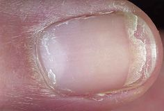 split fingernail