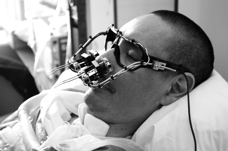 Evan Roth. The EyeWriter project is an ongoing collaborative research effort to empower people who are suffering from ALS with creative technologies. It is a low-cost eye-tracking apparatus & custom software that allows graffiti writers and artists with paralysis resulting from Amyotrophic lateral sclerosis to draw using only their eyes.