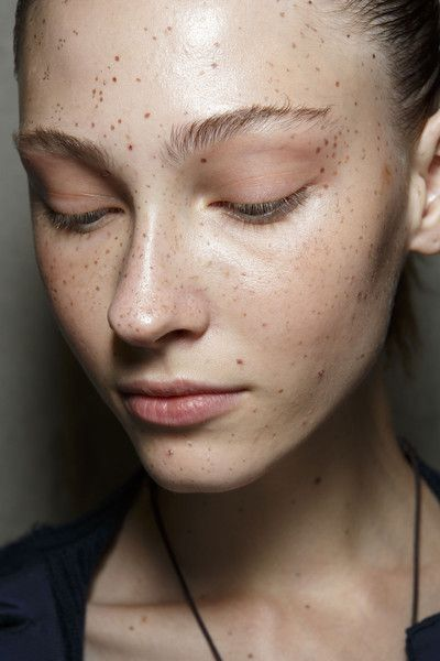 how to get rid of freckles in a week