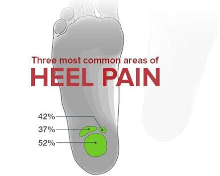 Plantar Fasciitis is a repetitive stress injury that causes acute pain in the foot, heel, and calf muscle.