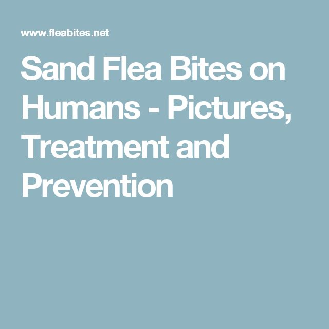 Sand Flea Bites on Humans - Pictures, Treatment and Prevention