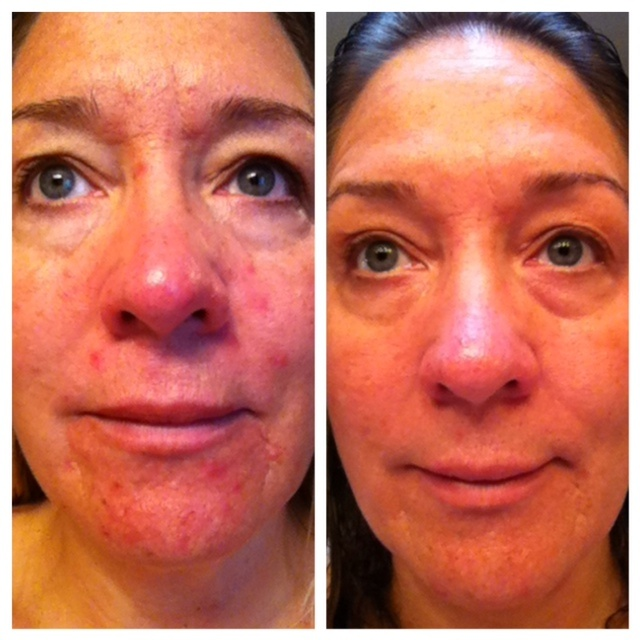 Wow....my skin has never been better! This is my first 12 week results! Perky eyes and clear skin....LOVE IT!