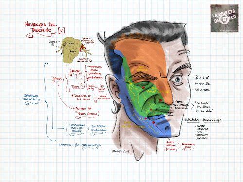 La Chuleta de Osler: Neurología - Neuralgia del Trigémino