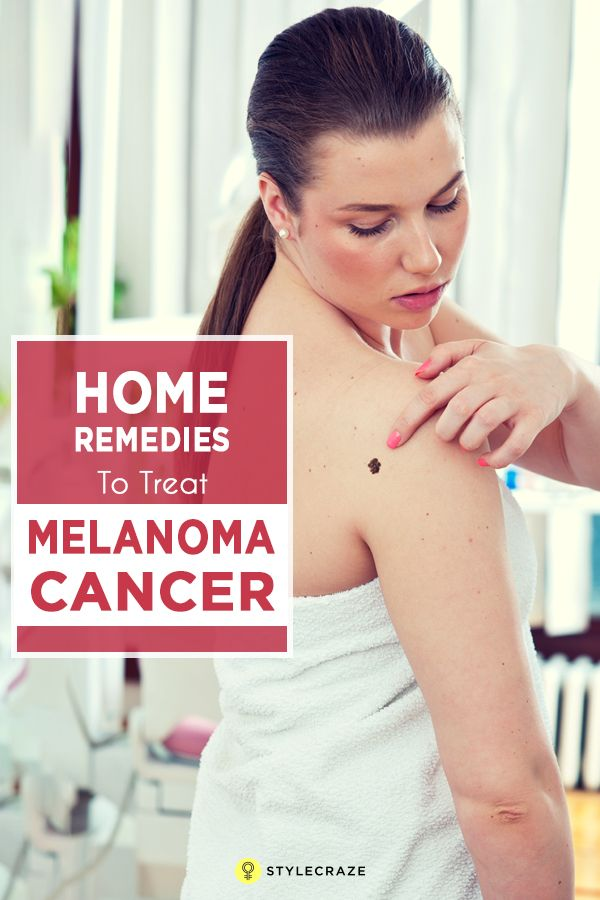 14 Effective Home Remedies To Treat Melanoma Skin Cancer