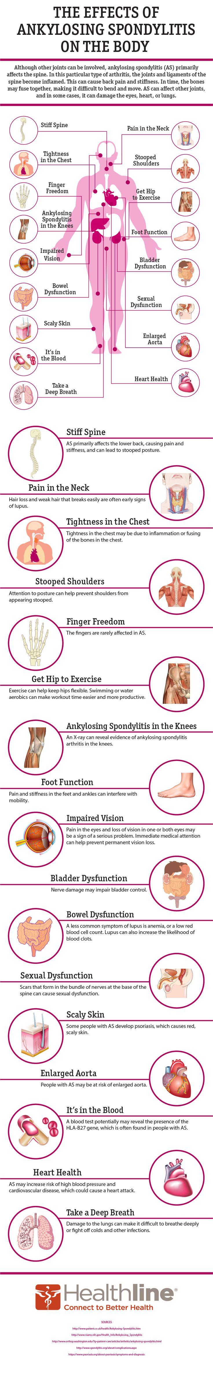 The Effects of Ankylosing Spondylitis on the Body #AnkylosingSpondylitis #autoimmune