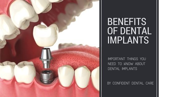 Dental Clinic Bangalore – Confident Dental Care offers best dental services as Root Canal Treatment (RCT), Dental Implants, Cosmetic Dentistry, Cost #cosmetdentistry