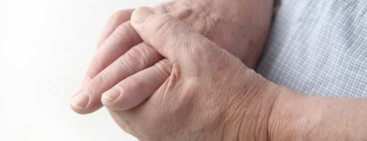 SUPER cure for arthritis and other inflammatory joint conditions