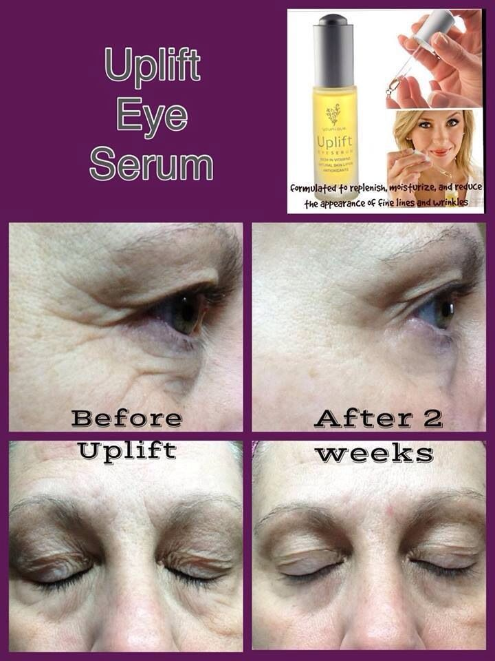 Wooo amazing results! Reduce the appearance of lines around your eyes, mount, forehead or neck with UPLIFT eye serum.  www.youniqueproducts.com/abbyknight