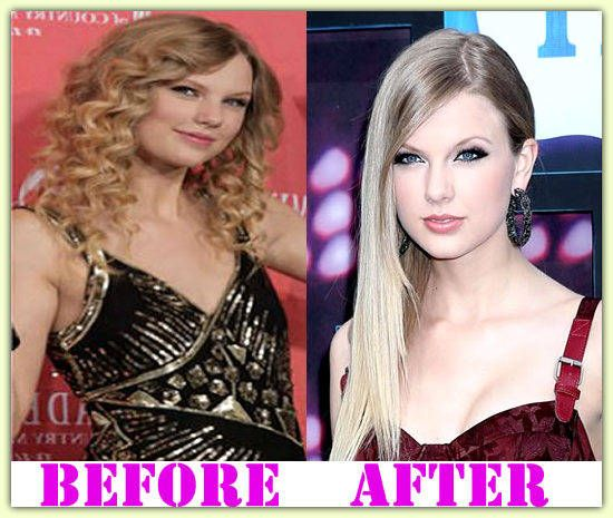 Taylor Swift Plastic Surgery Before And After # ...