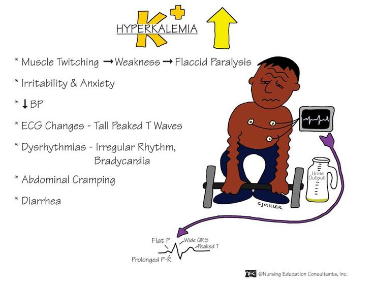 hyponatremia signs and symptoms - Google Search