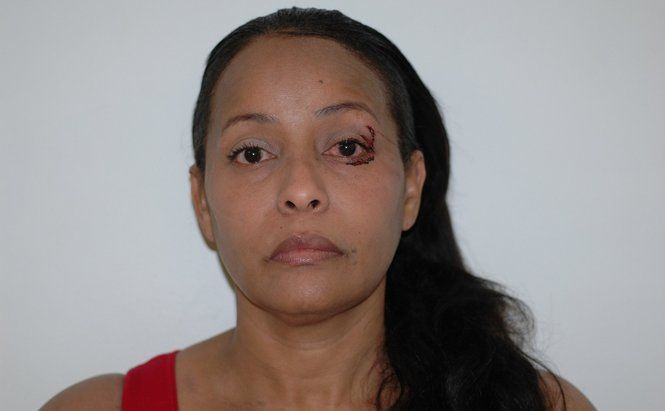 Kenia E. Nicolas-King, 48, of Teaneck, N.J. is charged with aggravated assault, according to police.