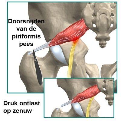Zenuwpijn in de bil die doorloopt tot in het been wordt ook wel ischias genoemd. De meest voorkomende oorzaak voor ischias is irritatie van de spinale zenuwen in of nabij de lumbale wervelkolom. Soms is [...]