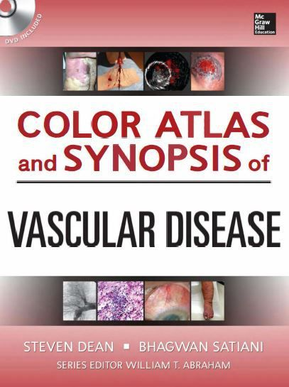 Hundreds of High-Quality Images Span the Entire Spectrum of Vascular Disease Color Atlas of Vascular Diseases is designed to help you properly identify and manage vascular diseases involving the arterial, venous, and lymphatic system. It offers a clinical and synoptic approach to the full range...