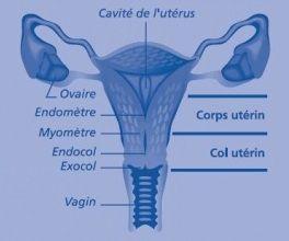 Cancers de l'endomètre