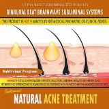 Natural Acne Treatment   keep #acne away with easy tips to treat acne, go here http://acneawaytips.blogspot.com to treat acne and keep your skin clear
