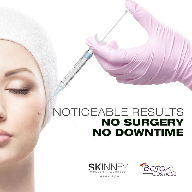 Smooth out wrinkles that age the eyes and brow area with BOTOX NYC from SKINNEY Medspa