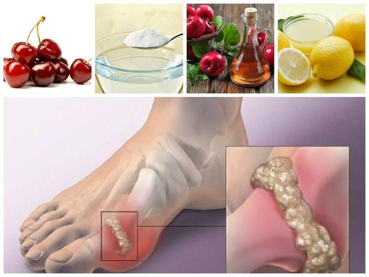 tratamientos naturales para reducir el acido urico remedios naturales para acido urico y gota acido urico que organo lo produce