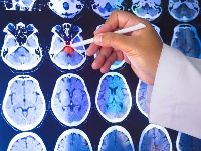 What is dementia? http://www.rxeconsult.com/healthcare-articles/Definition-Symptoms-And-Signs-Of-Common-Types-Of-Dementia--966/