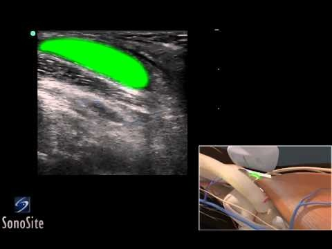 17 Best images about KNEE ULTRASOUND on Pinterest | Knee ...