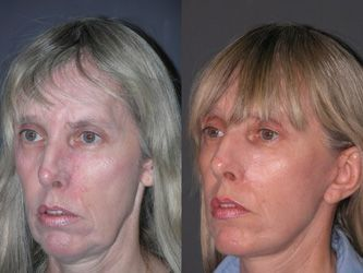 The Organic Facelift: Take A Crack At Face Toning Treatments For A More Youthful Look