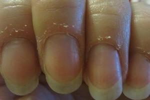 Заусенцы - причины появления, домашние средства для устранения и лечения, правильное питание для профилактики и здоровой кожи