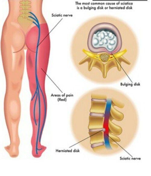 Natural Sciatica Relief System Reviews