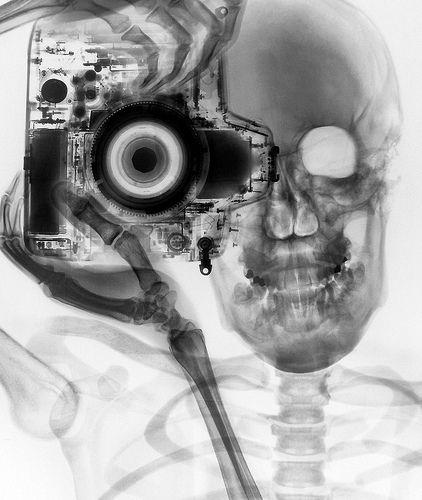 A close-up on bone health