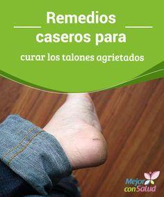 Remedios caseros para curar los talones agrietados   Los pies agrietados son poco atractivos. La buena noticia es que pueden ser fácilmente atendidos con algunos remedios caseros simples y fáciles.